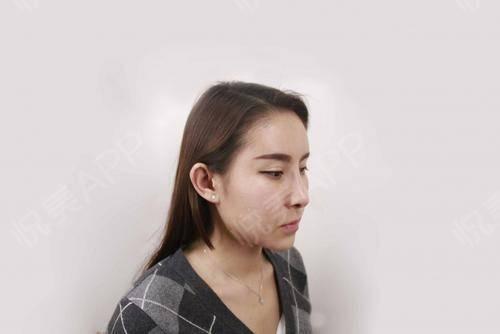 目前对手术的效果很满意,每天看到自己的额头,苹果肌,太阳穴那么饱满,特别是化完妆后更好看了,开心ing!额头相比于其他部...