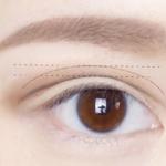 内双如何自然地变成双眼皮?