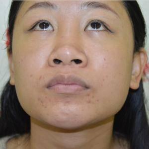 鼻综合术后