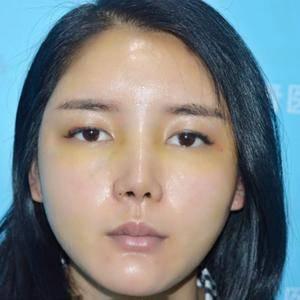 鼻综合加自体脂肪全脸填充术后