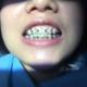 今天发一篇治疗过程,昨天去钢丝加力了,整个上排牙齿间隙已经拉开,下排牙齿比较难拉开,我一直以为后面大...