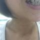 【柴亚军主任牙齿矫正】做牙齿有五个月了,矫正真的是很漫长的工作啊,一定要有耐心,每次去调整加力的时候...