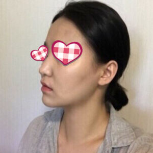 鼻綜合整形
