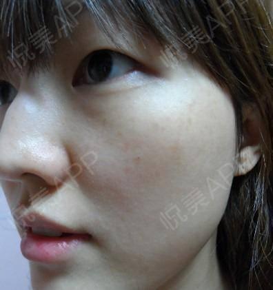 皮秒激光术后62天_祛斑术后62天_皮肤美容术后62天_悦Mer_1840744193分享图片5