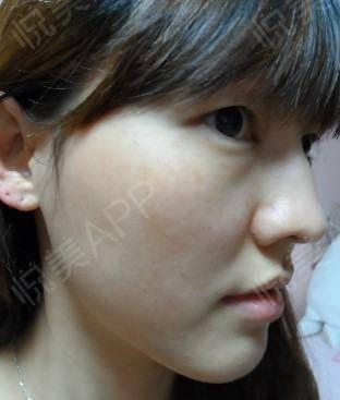 皮秒激光术后62天_祛斑术后62天_皮肤美容术后62天_悦Mer_1840744193分享图片7