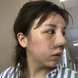 徐粉粉有只猫mao鱼小渔逆袭之路——肋软骨综合隆鼻篇术后3天第2页图