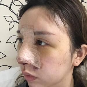 徐粉粉有只猫mao鱼小渔逆袭之路——肋软骨综合隆鼻篇术后3天第3页图