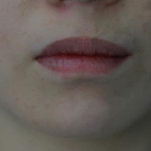 唇部修复手术
