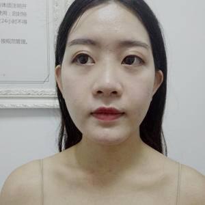鼻综合的整形