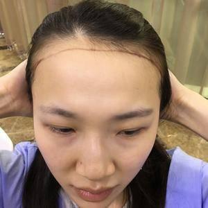 植发 发际线种植 头发加密