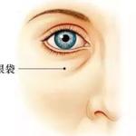 眼袋是怎么形成的?