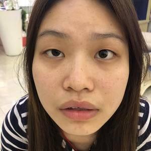 长沙叶子医疗美容小鼻综合