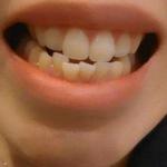 可能是小时候换牙期间,自己不懂得拔牙,让坏牙把新长出来的牙齿挤歪了,还是...