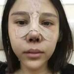 民航广州医院+鼻综合整形第一天我对自己的鼻子不是很满意,不够...