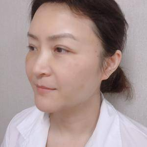 快乐奶茶789北京炫美抗衰逆龄提升定制术后5天第3页图