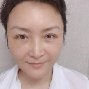 快乐奶茶789北京炫美抗衰逆龄提升定制术后5天第1页图