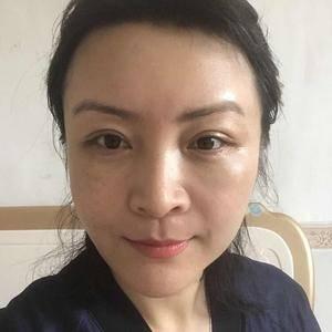 快乐奶茶789北京炫美抗衰逆龄提升定制术后10天第2页图