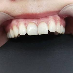 微笑8颗牙贴面