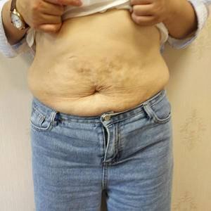 腰腹吸脂术