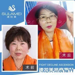 【速拉美】解决女人面部衰老