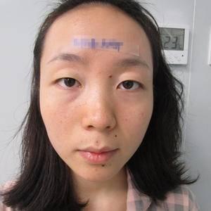 成都素美医疗美容(帕克双眼皮)