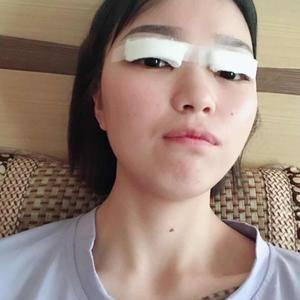 晚fengxia爱到飞起的双眼皮日记术后1天第1页图