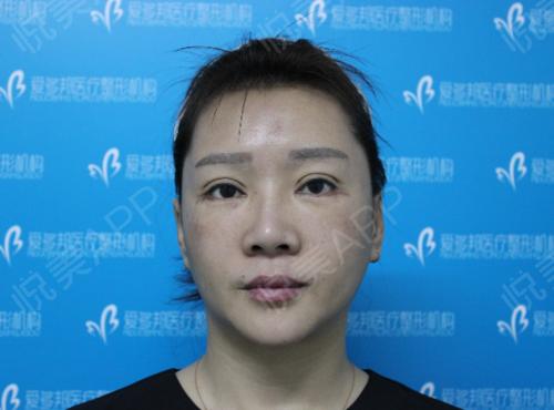 术后7个对月,恢复的挺满意的,轮廓已经出来了,也没有复发,深受生长因子困扰2年多,感谢王绍国医生