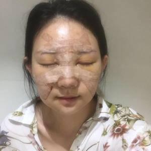 一朵洁白的云北京炫美自体肋软骨鼻综合告别短鼻子术后5天第2页图