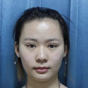 成都艾米丽整形毛发移植手术日记