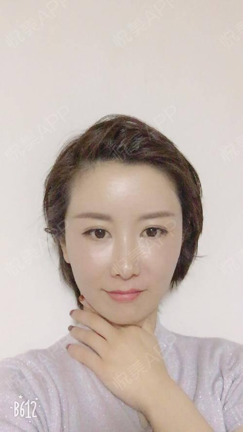 今天化了个美美的妆,最近几天感觉皮肤特别好,应该是做完脂肪填充的原因,没想到还有这个功效。现在越来越喜欢我的额头和苹果肌...
