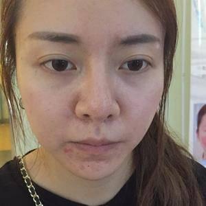 鼻修复整形