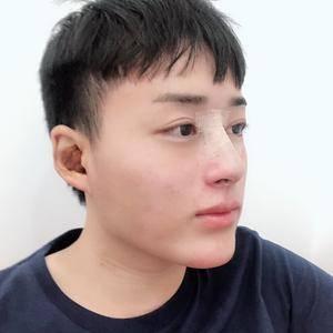 鼻综合腾讯分分彩官网韩式生科假体耳软骨垫鼻尖