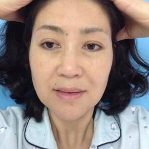 自体脂肪面部填充和面部6S无痕提升术