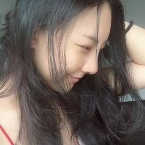 一朵洁白的云北京炫美自体肋软骨鼻综合告别短鼻子术后9天第3页图