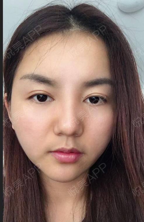 感谢黎星医生,脂肪填充+双眼皮让自己大变样,好看之后特别自信。