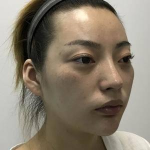【武汉希思特鼻修复】