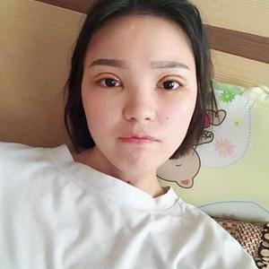 晚fengxia爱到飞起的双眼皮日记术后5天第1页图