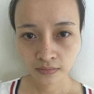 自体脂肪填充告别凹陷太阳穴不对称脸型