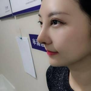 一朵洁白的云北京炫美自体肋软骨鼻综合告别短鼻子术后17天第1页图