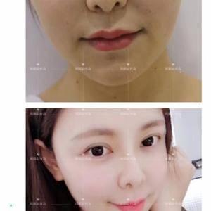 【假体垫鼻基底】鼻基底填充,拒绝凹陷,不要凸嘴,抹掉法令纹