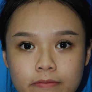 鼻部综合手术