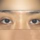 双眼皮修复成功的关键是什么?