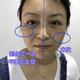 线肽水光-第0天今天又来到北京炫美,做最最最新的抗衰神器,线肽水光~刚刚听到这个名字,以为是水光针,又...