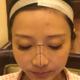 我十年前做的鼻整形,放的I型假体,虽然没有出现什么感染,假体外露之类的并发症,但是鼻子整容痕迹还是有...