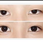 内双怎样来做双眼皮手术
