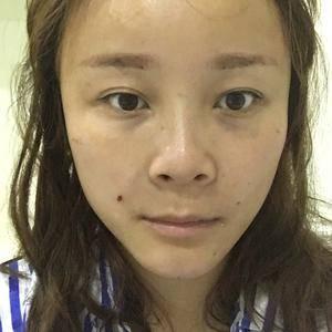 Chung自体脂肪面部填充 重塑青春之美术后1天第3页图