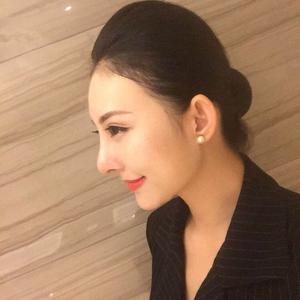 一朵洁白的云北京炫美自体肋软骨鼻综合告别短鼻子术后45天第3页图