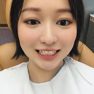 深圳富华 金属牙齿矫正