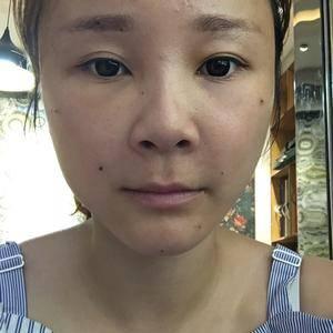 Chung自体脂肪面部填充 重塑青春之美术后5天第1页图