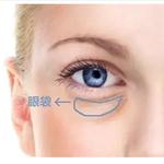 难看的眼袋是怎么形成的?